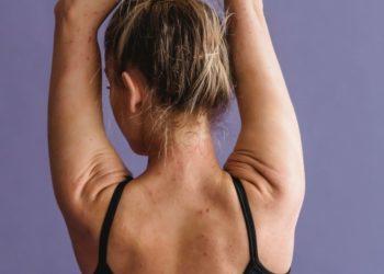 ¿Cuáles son los ejercicios más efectivos para reducir espalda?